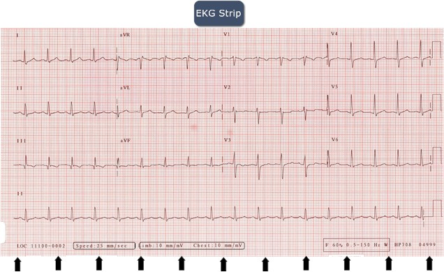regularity of ekg strips